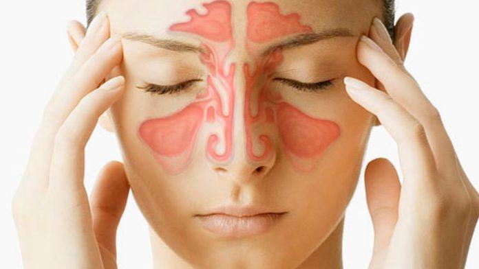Remédio caseiro para rinite e sinusite